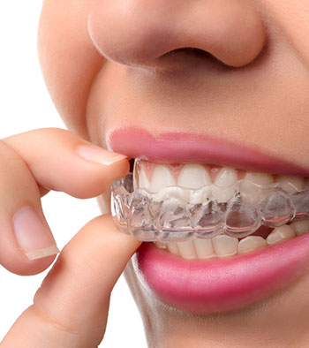 woman removing clear Invisalign aligner