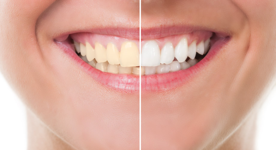 Side by side comparison of a smile with yellowed teeth on the left and white teeth on the right.