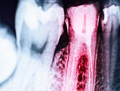 X-ray of two teeth, one highlighted red to show where tooth infection is